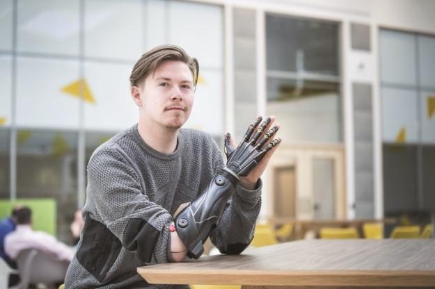 bionic-arm